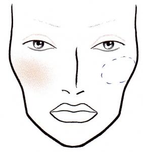 preenchimento de maca do rosto barra da tijuca rio de janeiro