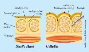 subcisao tratamento para celulite e preenchimento